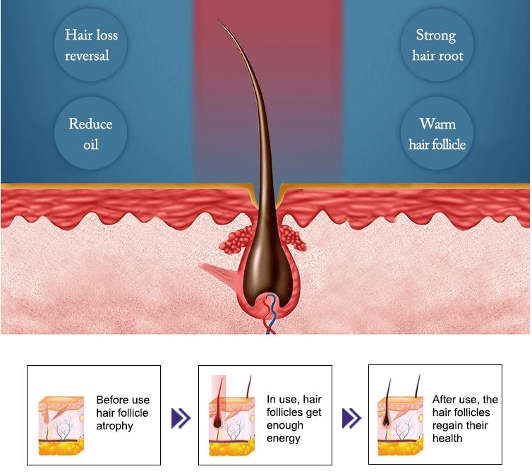 Máquina de Láser de Diodo para regeneracion del cabello