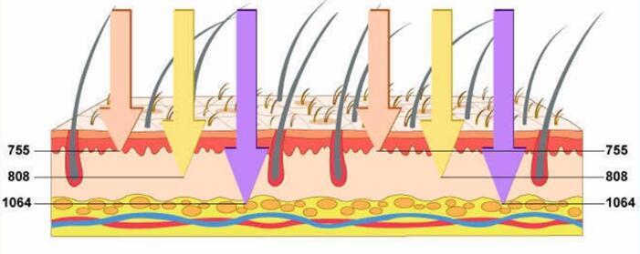 máquina de depilación láser de diodo de tres longitudes de onda portátil