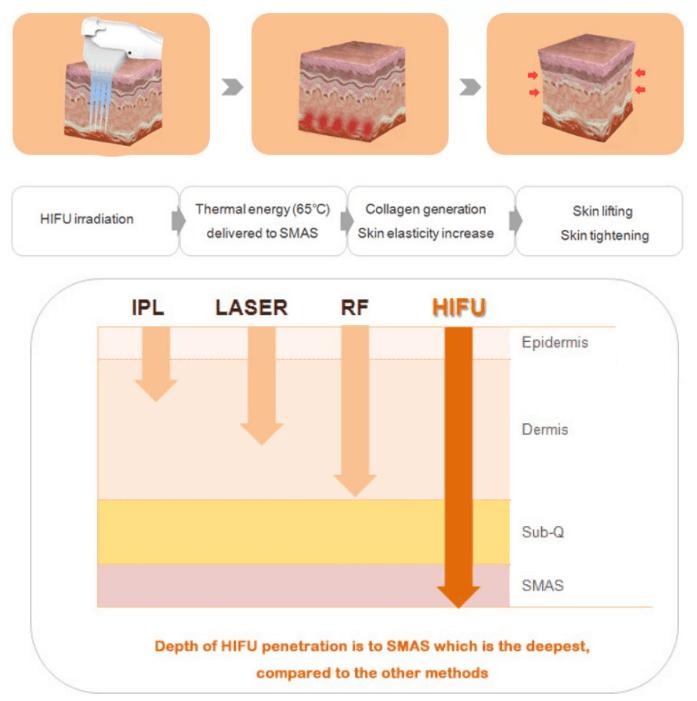 recomendación de la máquina de rejuvenecimiento de la piel